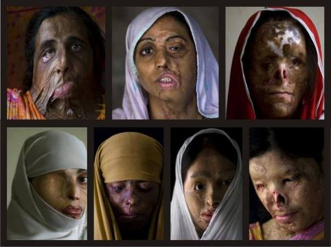 IMP Acid attack victims