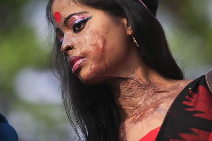 Alisha Gawri acid att victim