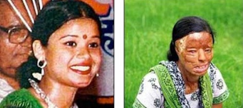 Sonali-Mukherjee-acid attack victim