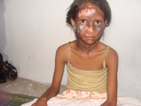 Girl who suffered burn wounds