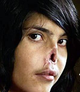 Girl w cut nose