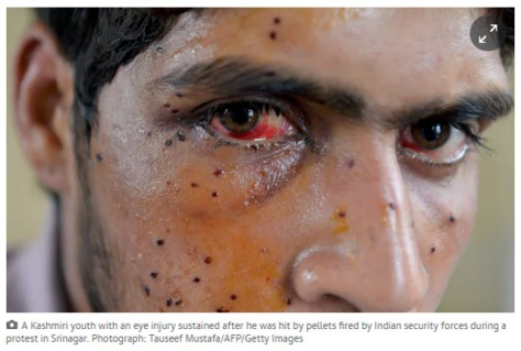 Kashmir youth pellet